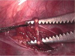 лапароскопическая операция. Вид изнутри