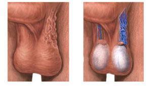 Варикозное расширение вен яичка
