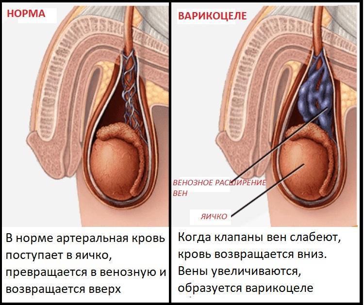 Причины варикоцеле